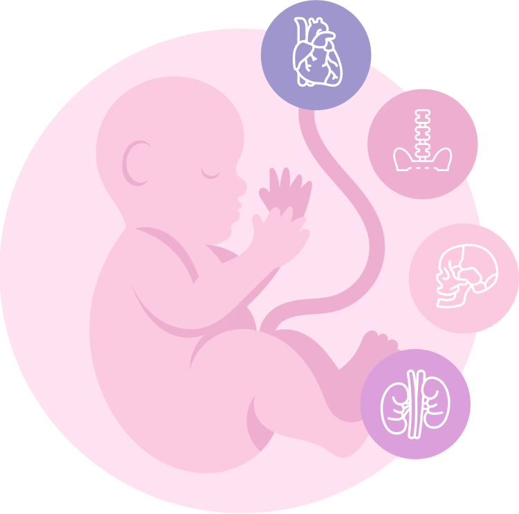 Not all abnormalities detected during pregnancy are lethal
